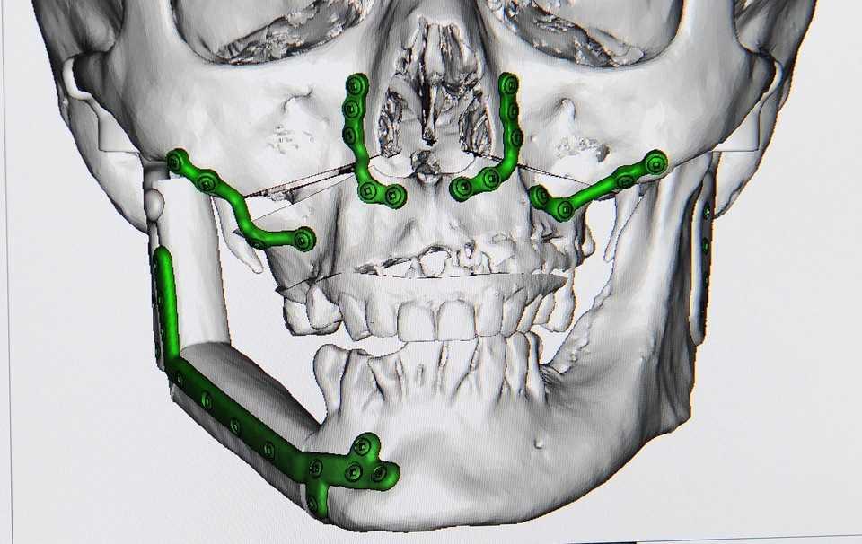 Dzięki lekarzom odzyskałam twarz