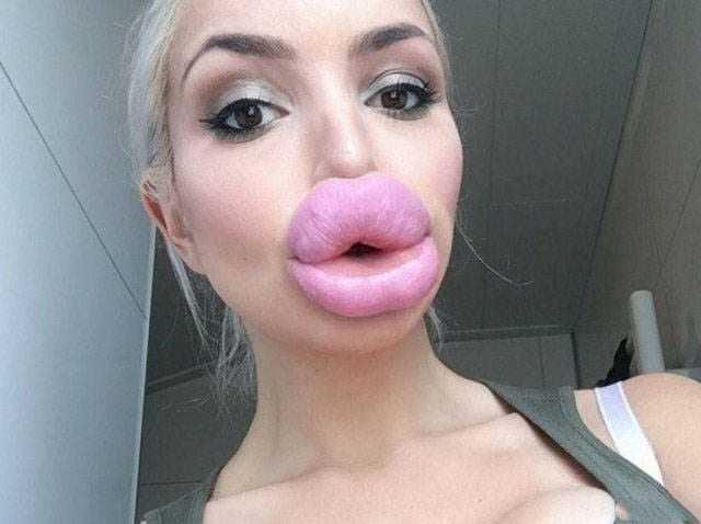 To już jest chore. Zdjęcia kobiet, które przesadziły z powiększaniem ust