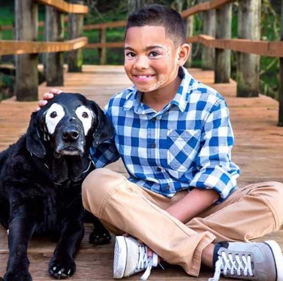 Chłopiec choruje na bielactwo. Otuchy dodaje mu pies, który zmaga się z tą samą chorobą