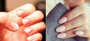 Jak uratować zniszczone paznokcie po hybrydzie? 10 cennych porad