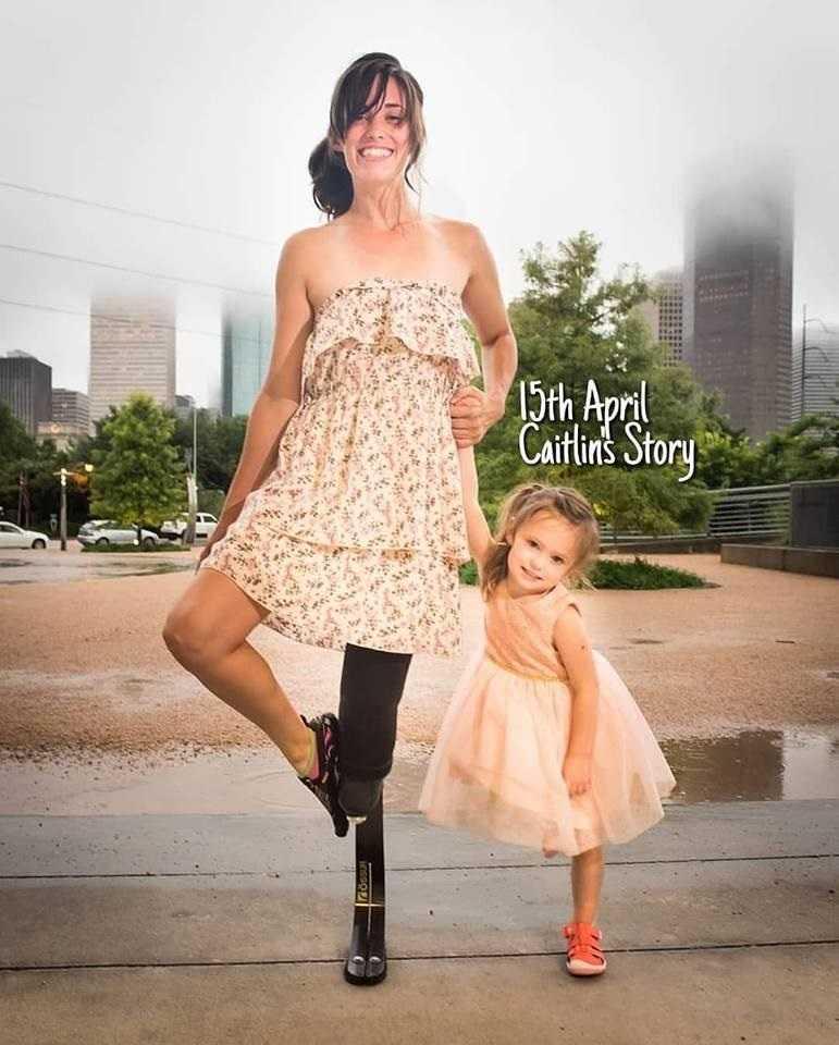 Dramat ciężarnej. Wolała stracić nogę niż dziecko