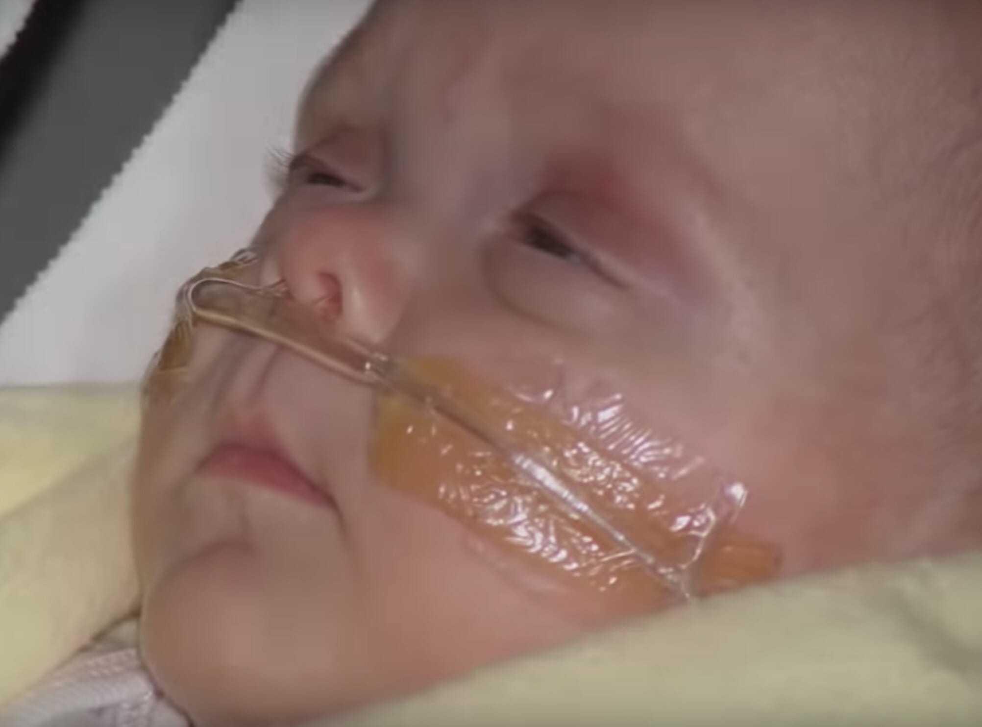 Dziecko, które miało 5% szans na przeżycie, zadziwiło lekarzy i przetrwało