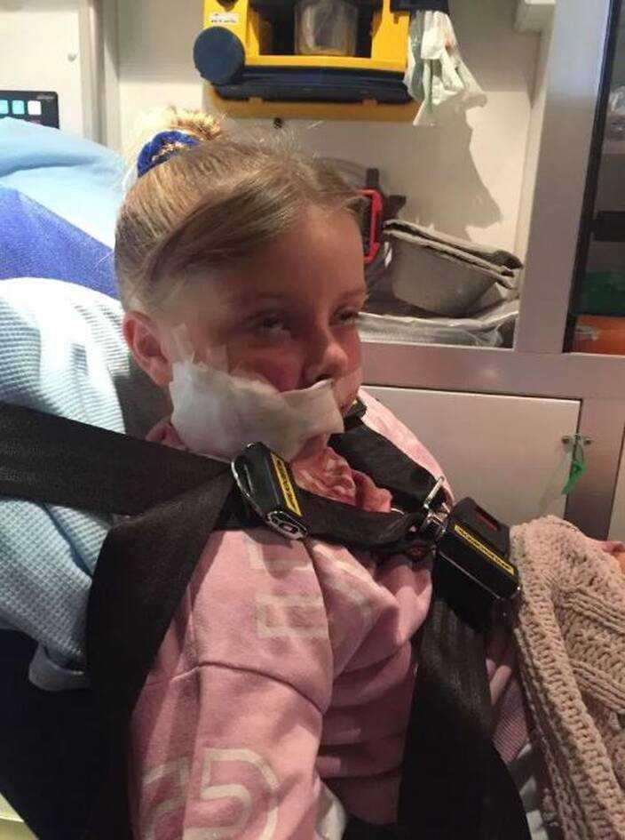 Rozwścieczony labrador wyrwał się i rzucił na 9-latkę. Zmasakrował twarz dziewczynki