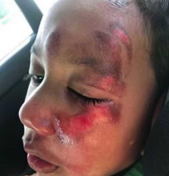 Dowiedziała się, że jej niepełnosprawny syn sam spadł ze schodów. 4-latek wyszeptał prawdę