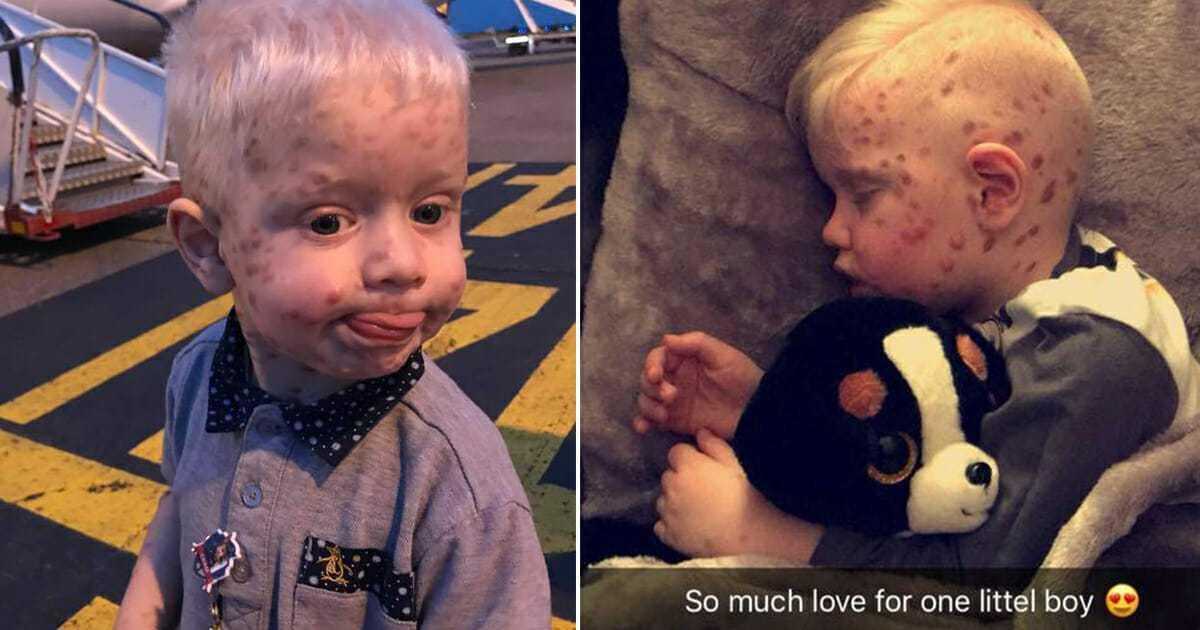 Kobieta myśli, że jej syn ma ospę, okazuje się, że to choroba, która zdarza się raz na 500 000 urodzeń