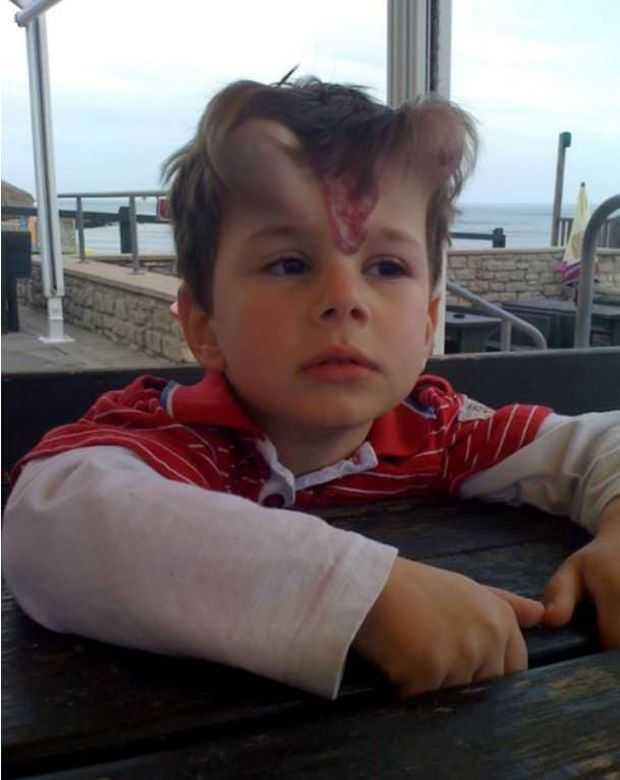 Wszczepili mu pod skórę implanty, aby pozbyć się znamion. Chłopcu wyrosły na głowie rogi