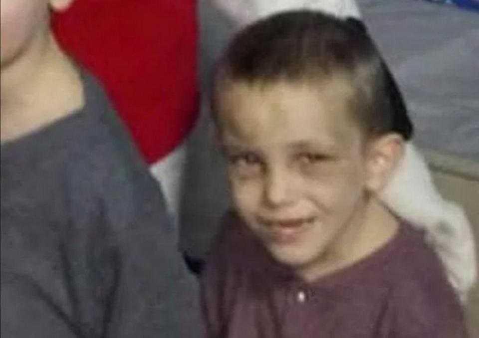 Przerażające zdjęcia obrażeń zabitego 5-latka. Zrobili mu to najbliżsi