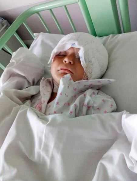 2-letni chłopiec został pogryziony przez psa. Matka pokazała zdjęcie twarzy dziecka