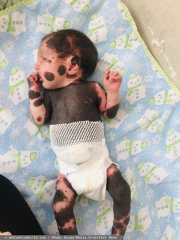 Chłopiec urodził się z nietypowym wyglądem. Lekarze powiedzieli rodzicom, że mogą go zostawić