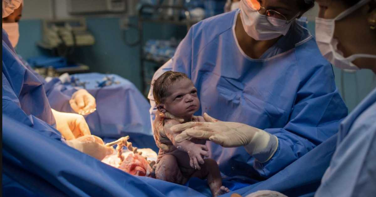 Tuż po narodzinach ściągnął maseczkę. Urocze zdjęcie noworodka obiegło Internet