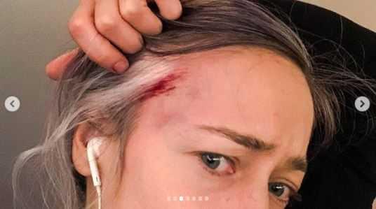 """Matylda Damięcka z zakrawioną głową. """"Dostałam od pana policjanta"""". Opublikowała wstrzasające nagranie"""