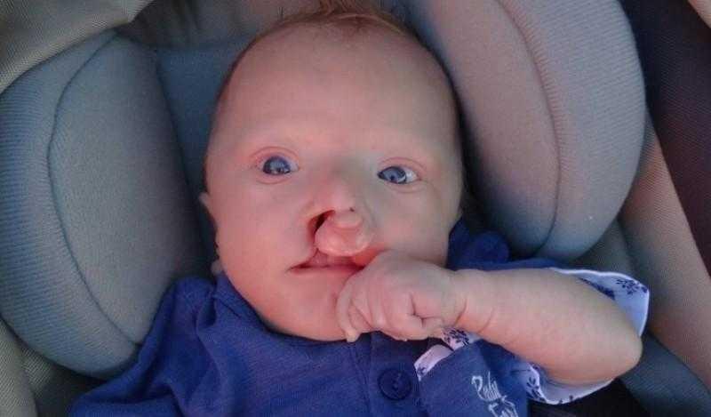 Zdecydowała się urodzić chore dziecko. Wiedziała, że płód ma zespół Edwardsa