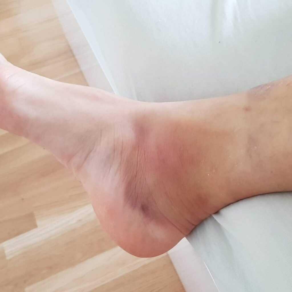 Wypadek podczas jubileuszu zespołu Boys. Marcin Miller pokazał porażające zdjęcie i poinformował o stanie zdrowia