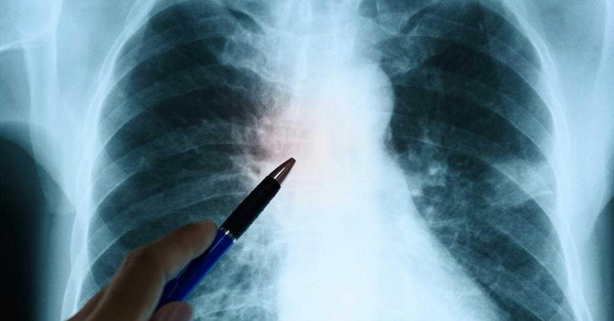 Koronawirus atakuje serce. Oto znaki ostrzegawcze