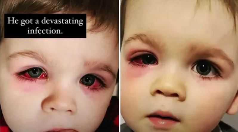 Oczy chłopca zrobiły się czerwone, mógł stracić wzrok. Mama ostrzega przed zabawkami do kąpieli