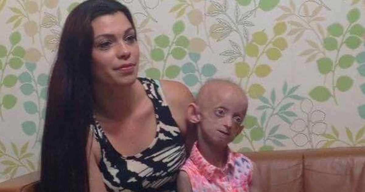 Nie żyje 18-latka uwięziona w ciele staruszki. Biologicznie miała 144 lata